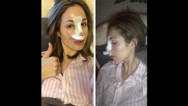 Ella se hizo varias cirugías para parecerse a Bella Hadid [FOTOS]
