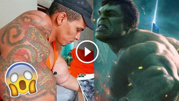 OMG! Este hombre quiso parecerse a Hulk y casi le amputan los brazos [VIDEO]