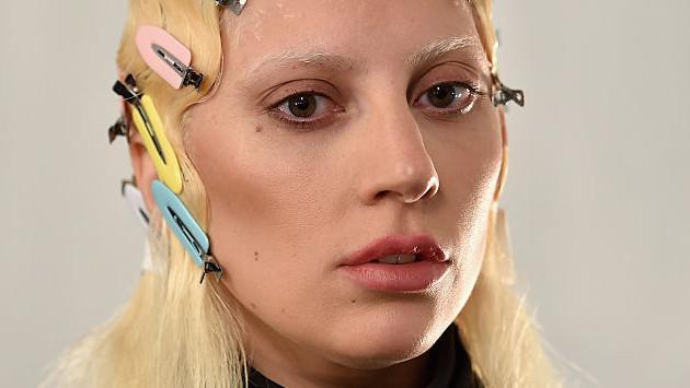 ¡Lady Gaga le da su apoyo incondicional a Kesha!